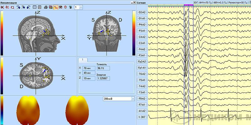 Трехмерная локализация источников электрической активности мозга